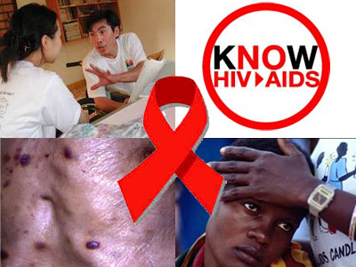articles on hiv/aids 2012
